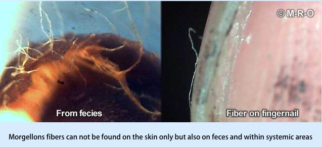 Latest Morgellons Findings 2018